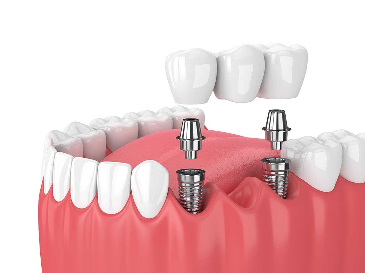 Implant dentaire : Quelles sont les qualités de l'implant ?
